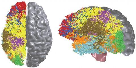 Mit Hilfe des Algorithmus Bluematter wollen die Wissenschaftler die Funktionsweise des Gehirns entschlüsseln. (Bild: IBM)