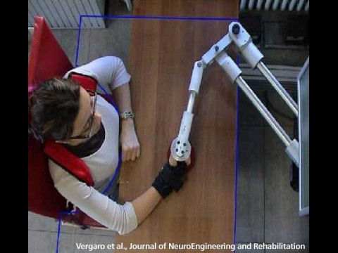 Der Eisenarm leitet die Patientin bei Armübungen an. (Foto: Vergaro et al., Journal of NeuroEngineering and Rehabilitation)