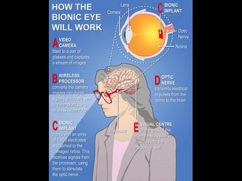 Schema: So funktioniert das System. (Grafik: Bionic Vision Australia)