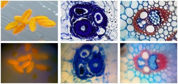 Präparate, oben mit kommerziellem Mikroskop und unten mit iPhone-Variante aufgenommen (Bild: UC Davis/Plosone.org/CC BY 2.5)