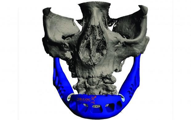 Computergrafik des Implantats von vorne... (Bild: Layerwise)