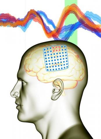 Schon eine kleine Gruppe von Elektroden (rot) in einem auf das Gehirn gelegten Gitter (blau) reichten dem Computer (im grün unterlegten Zeitintervall) aus, um die Gehirnaktivität einer Bewegung nach rechts (rote Kurven) von der nach links (blaue Kurven) zu unterscheiden. (Grafik: BCF/Universität Freiburg)