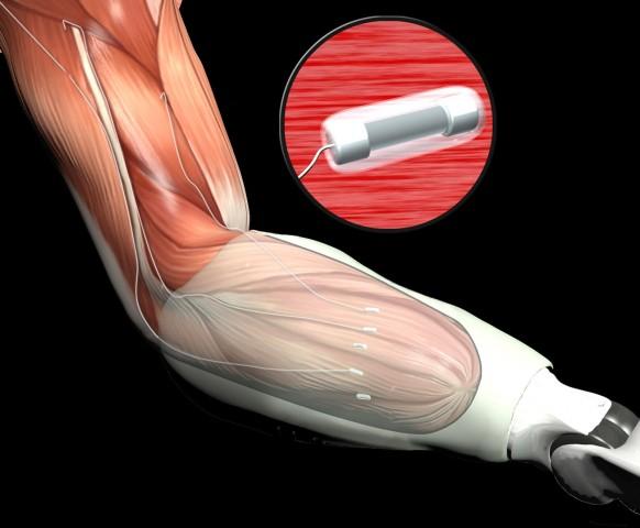 TMR: Muskelsignale werden abgenommen, um eine Prothese zu steuern (Bild: Darpa)