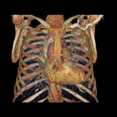 Der Brustkorb mit Rippen und Herz: Das System ist schnell genug, um ein Herz während eines Schlags zu erfassen. (Bild: GE)