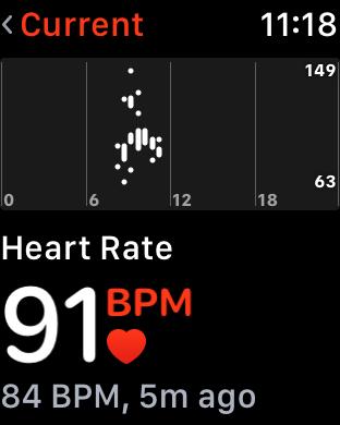 WatchOS 4.0 im Test: Apples praktische Taschenlampe mit autarkem Musikplayer - Die neue Herzschlag-App ... (Screenshot: Golem.de)