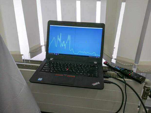 Der Walabot-Sensor kann auch Atembewegungen erfassen. (Bild: Tobias Költzsch/Golem.de)